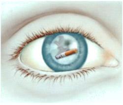 Катаракта от курения